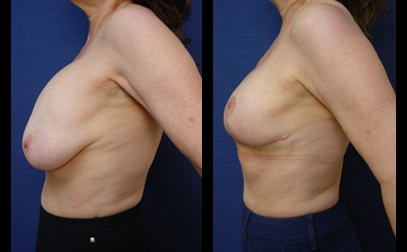 Changement prothese mammaire Tunisie avant apres