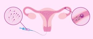 inseminacion artificialle technique