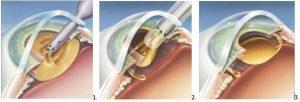 cataracte procedure