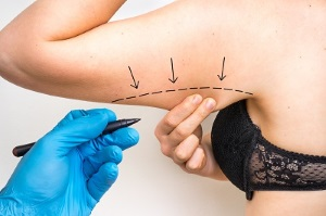 chirurgie esthetique silhouette tunisie lifting bras