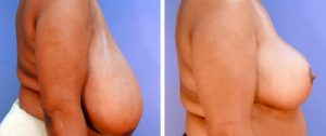 Reduction mammaire tunisie avant apres