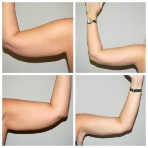 lifting bras tunisie avant apres