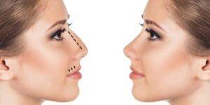 chirurgie nez turquie