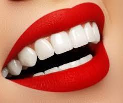 holywood smile maroc