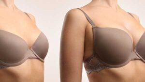 lipofilling-mammaire avant apres