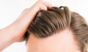 Greffe-de-cheveux-turquie