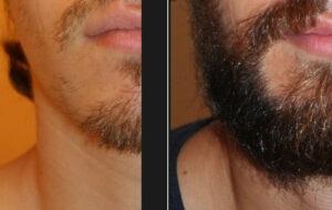 chirurgie barbe turquie